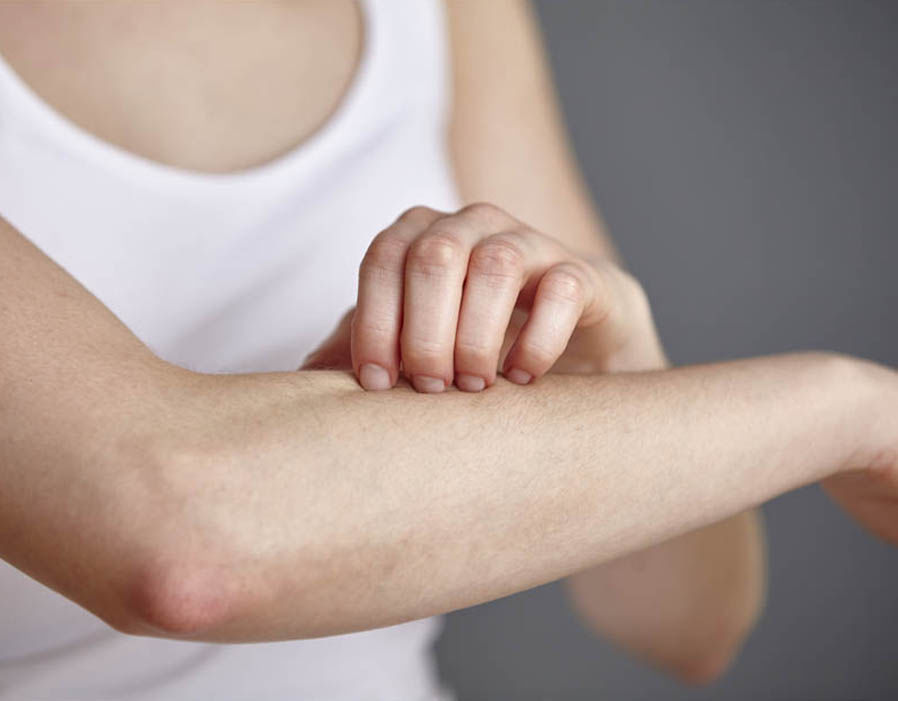 Research Suggests Psoriasis Could Be Soothed By Curcumin