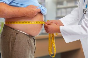 49606879 - doctor measuring obese man waist body fat. obesity and weight loss.