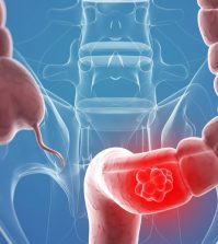 Curcumin May Suppress Colon Cancer Invasion | www.naturallyhealthynews.com