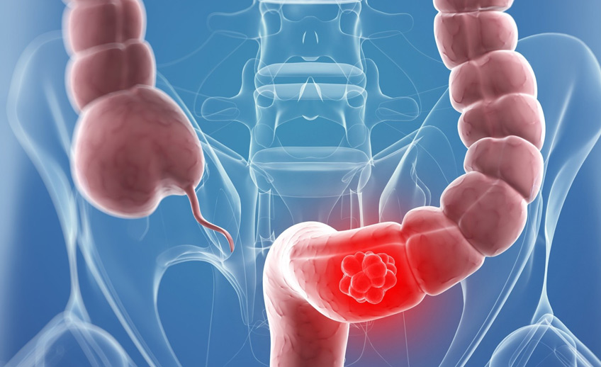 Curcumin May Suppress Colon Cancer Invasion