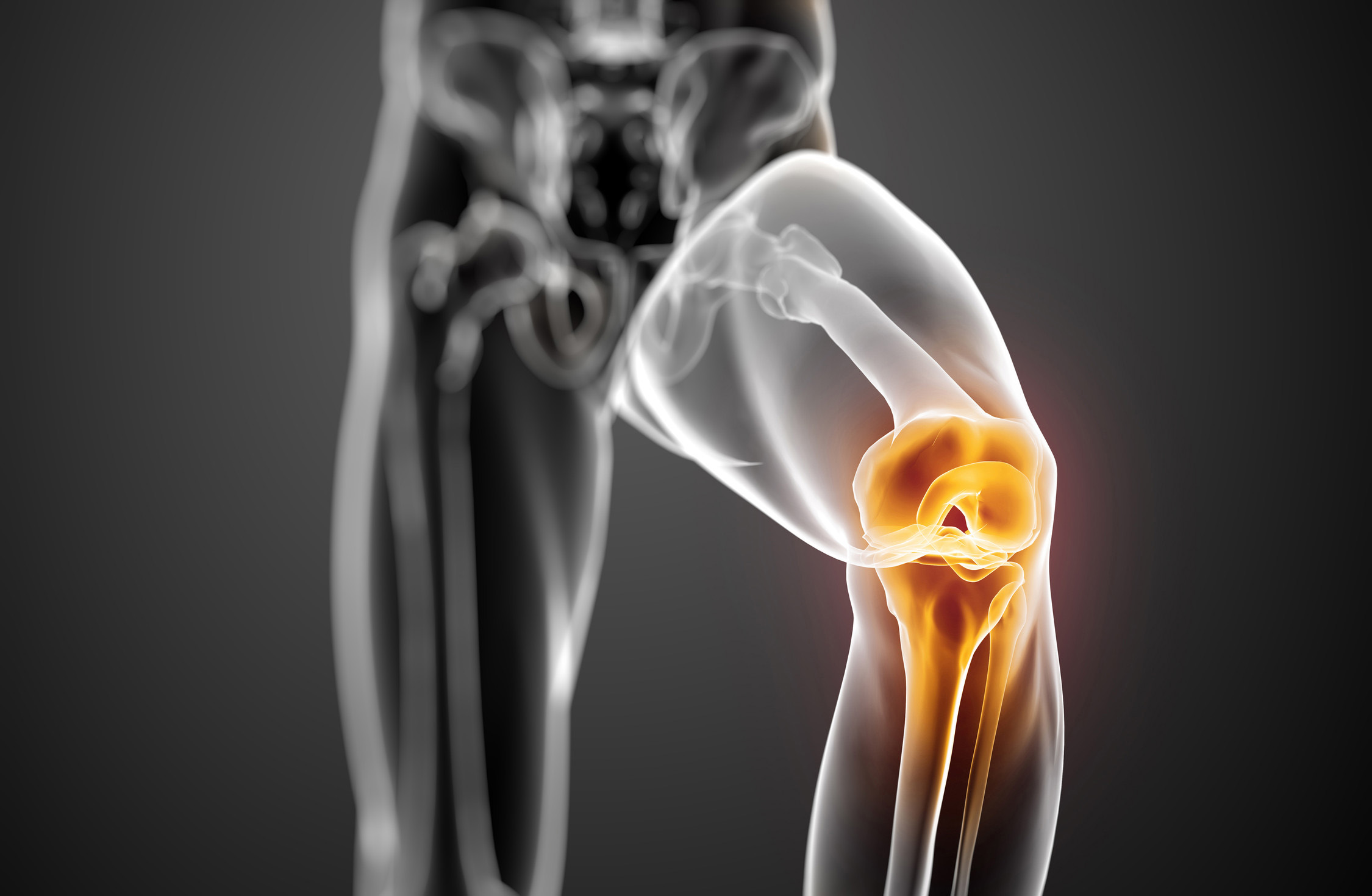 Curcumin Can Benefit Knee Joint Pain