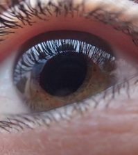 10 Key Tips and Facts You Need To Know About Glaucoma | www.naturallyhealthynews.com