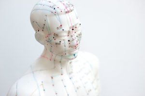 Acupuncture Provides Pain Relief More Powerful Than Opioids | www.naturallyhealthynews.com