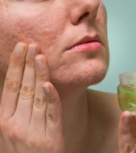 Six Natural Remedies For Fast and Effective Scar Removal | www.naturallyhealthynews.com