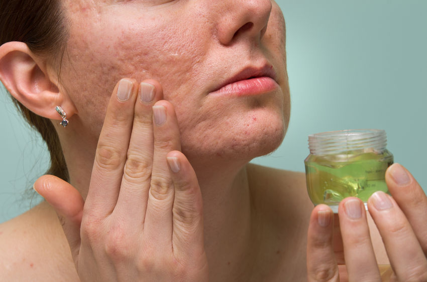 Six Natural Remedies For Fast and Effective Scar Removal