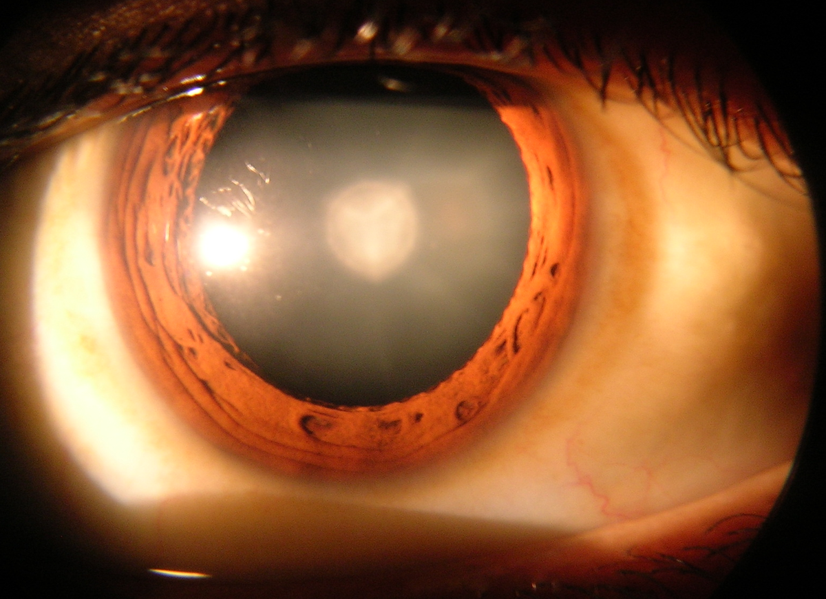 7 Healthy Ways To Naturally Prevent Cataracts And Care For Your Eyes