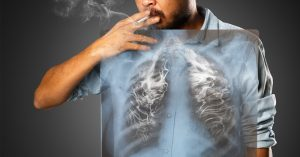 How Curcumin May Reverse Tobacco Induced Damage In Lungs | www.naturallyhealthynews.com