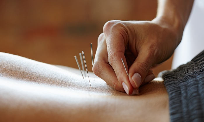Acupuncture Is An Effective Weight Loss Tool For Adults