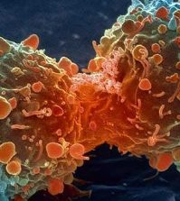 Curcumin Proven to ELIMINATE Stage-3 Myeloma Cancer | www.naturallyhealthynews.com