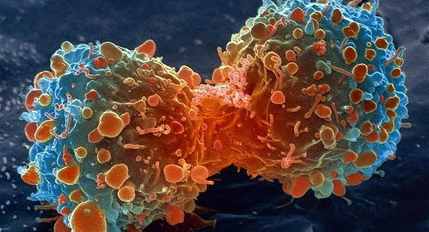 Curcumin Proven to ELIMINATE Stage-3 Myeloma Cancer