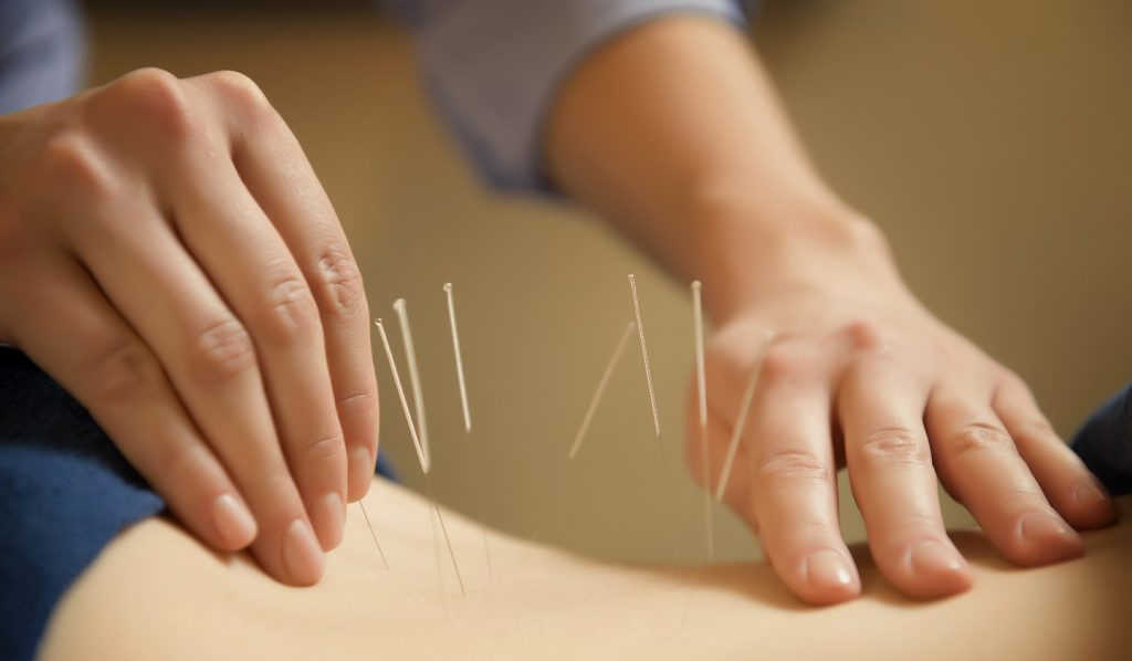 Acupuncture Can Reduce Risk Of Gout and Kidney Damage