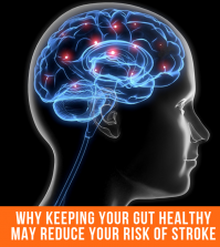 Why Keeping Your Gut Healthy May Reduce Your Risk Of Stroke