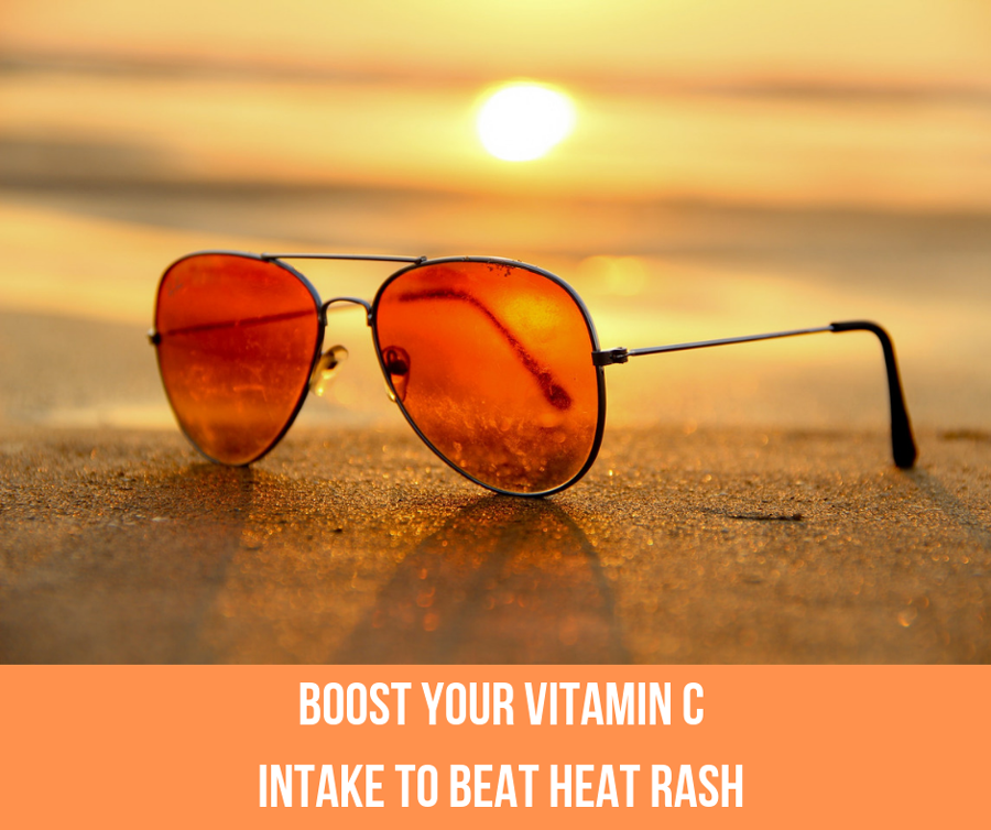 Boost Your Vitamin C Intake To Beat Heat Rash