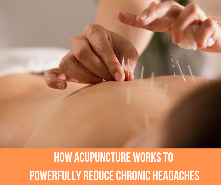 How Acupuncture Works To Powerfully Reduce Chronic Headaches